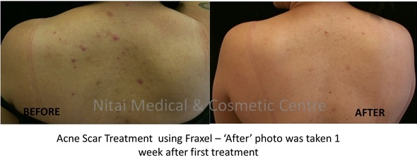 Acne Removal Treatment Melbourne