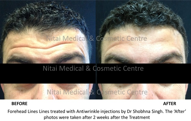Forehead Lines Treatment with Anti wrinkle Injections Melbourne - Nitai Cosmetic