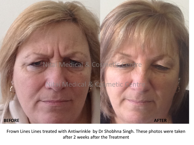 Anti Wrinkle Injection Results (Case Study) - Nitai
