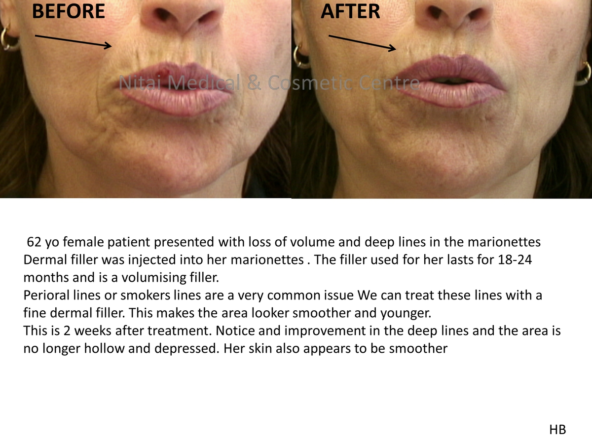 Dermal Fillers Melbourne Before & After - Nitai