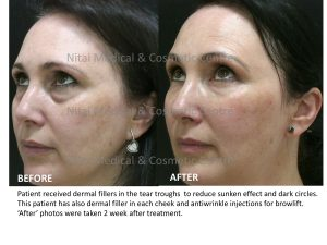 Dermal Fillers Melbourne Before & After Treatment - Nitai