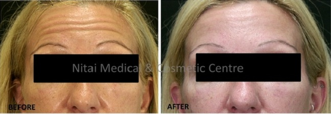 Eye Rejuvenation Melbourne Results (Case Study 1) - Nitai