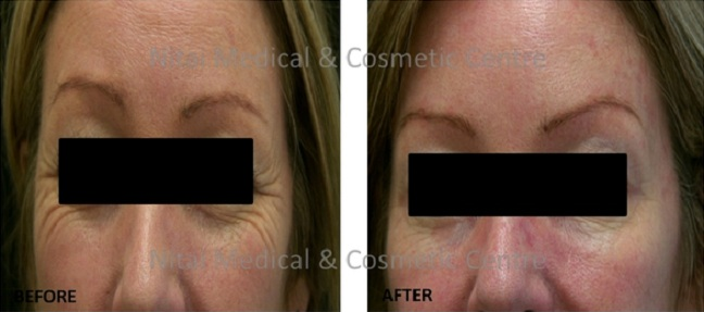 Eye rejuvenation 2Eye Rejuvenation Melbourne Results (Case Study 2) - Nitai