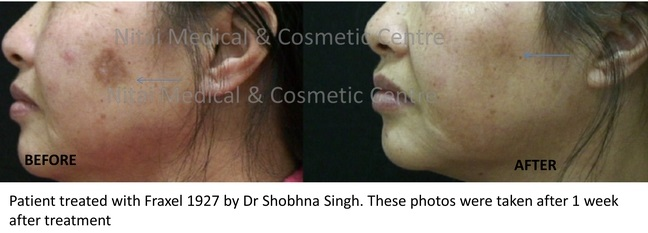 Acne Scarring Treatments Melbourne Before & After - Nitai