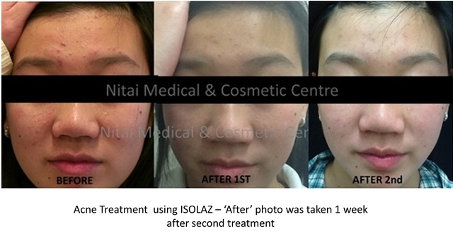 Isolaz Acne Therapy Result (Case Study 1) - Nitai