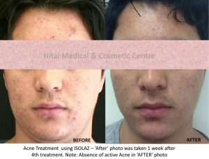 Isolaz Acne Therapy Result (Case Study 3) - Nitai Medical & Cosmetic Centre