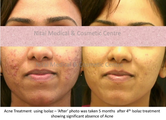 Isolaz Acne Therapy Result (Case Study 2) - Nitai