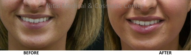 lip filLip Fillers Melbourne Before & After - Nitailers and lip plumper 1
