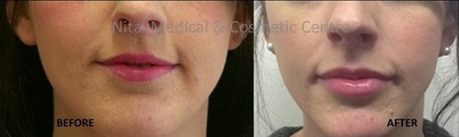 Lip Fillers Melbourne Before & After - Nitai