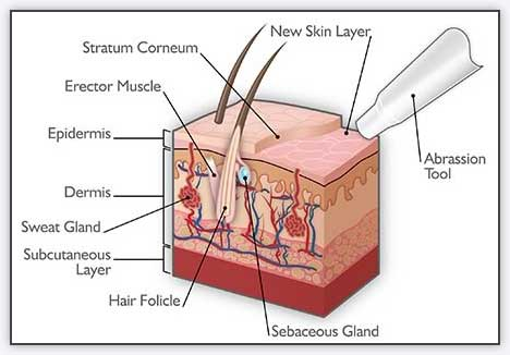 Microdermabrasion For Acne Melbourne - Nitai