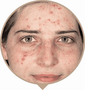 Acne Treatment Melbourne - Nitai