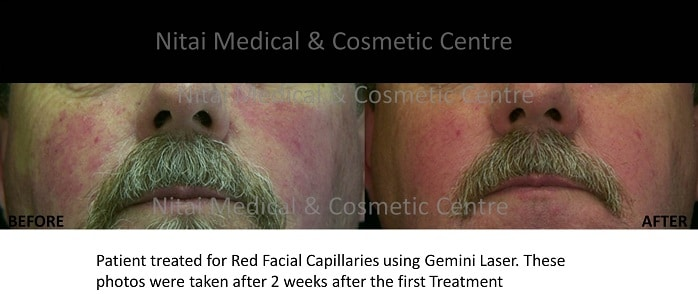 Burst Capillaries Before & After Treatment - Nitai