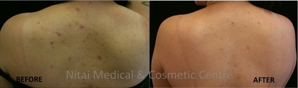Fraxel Laser Treatment Melbourne (Case Study 2) - Nitai