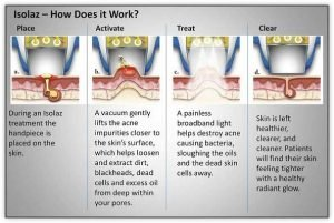 Isolaz Acne Therapy Melbourne - How it works - Nitai