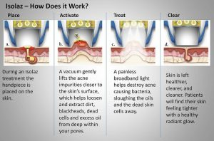 isolaz acne therapy 3