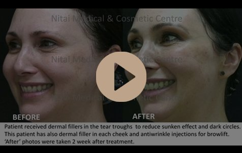 Dermal Fillers Melbourne Video - Nitai Medical and Cosmetic Centre