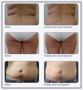 Body Shaping Before & After Treatment - Nitai