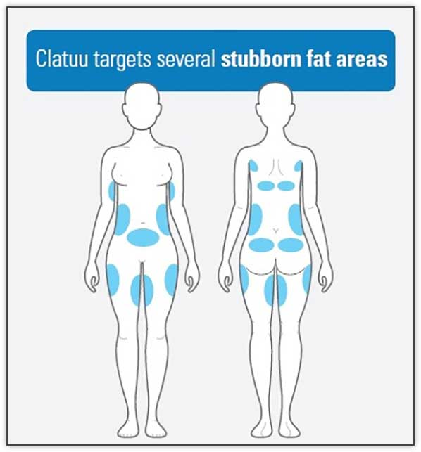 Fat Areas Treatment - Nitai