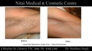 IPL Hair Removal Melbourne - Nitai