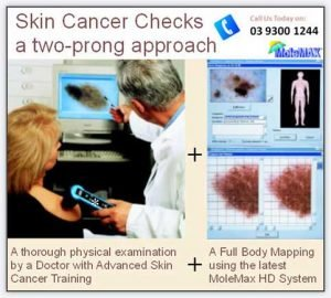 Skin Cancer Checkup At Nitai