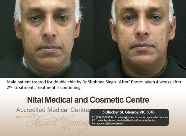 Treatment Double Chin - Nitai Medical & Cosmetic Centre