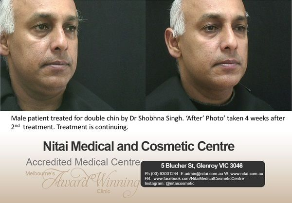 Double Chin Treatment in Melbourne - Nitai Medical & Cosmetic Centre