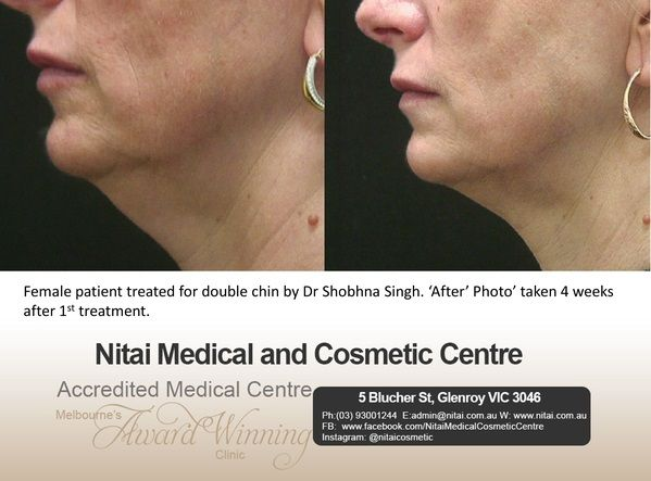 Double Chin Treatment - Nitai Medical & Cosmetic Centre