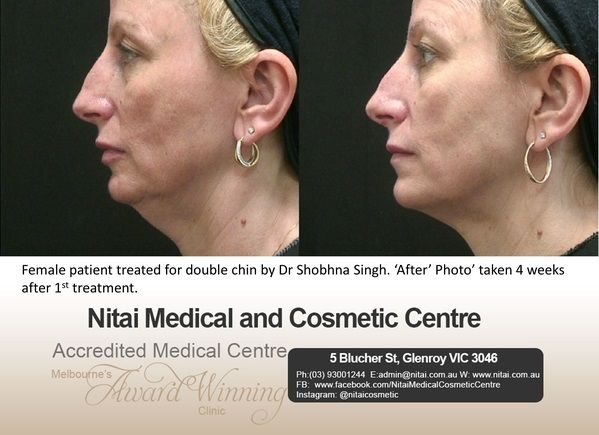 Double Chin in Melbourne - Nitai Medical & Cosmetic Centre