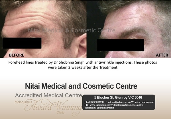 Forehead lines - Nitai Medical & Cosmetic Centre