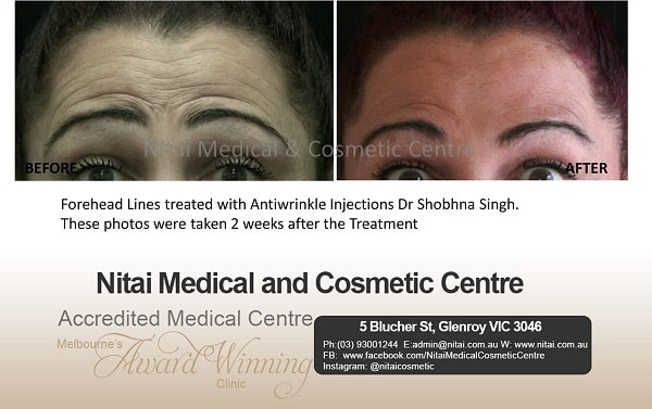 Forehead Lines Melbourne - Nitai Medical & Cosmetic Centre