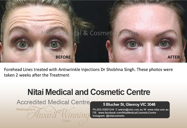 lines Forehead Treatment - Nitai Medical & Cosmetic Centre