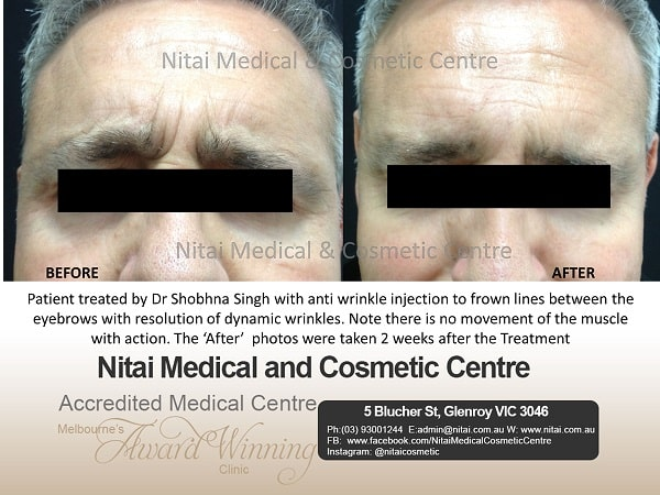 Anti Wrinkle Injections Melbourne - Nitai Medical & Cosmetic Centre