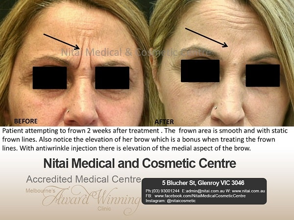 Treatment Frown Lines Lines - Nitai Medical & Cosmetic Centre