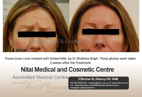 Anti Wrinkle Injections Frown Lines - Nitai Medical & Cosmetic Centre