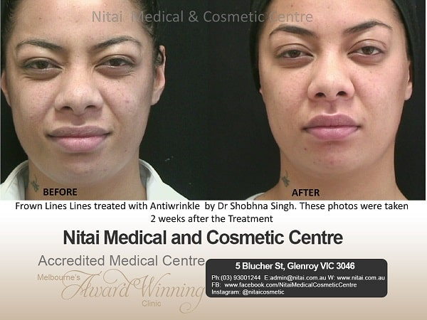 Frown lines lines treated with Antiwrinkle - Nitai Medical & Cosmetic Centre