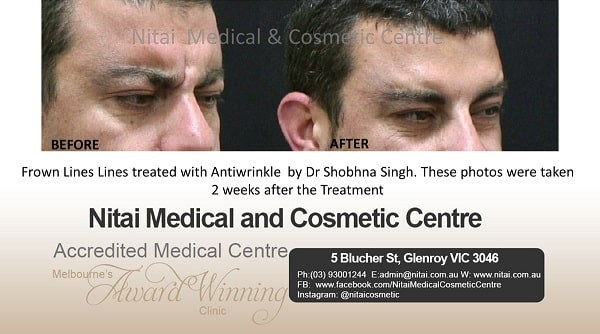 Frown Lines Anti Wrinkle Injections - Nitai Medical & Cosmetic Centre