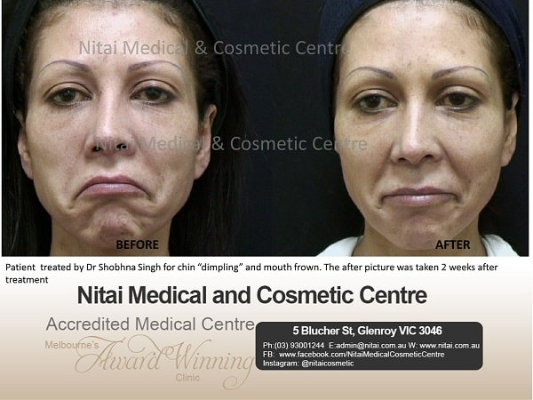 Dimpling and Mouth Frown Treatment - Nitai Medical & Cosmetic Centre