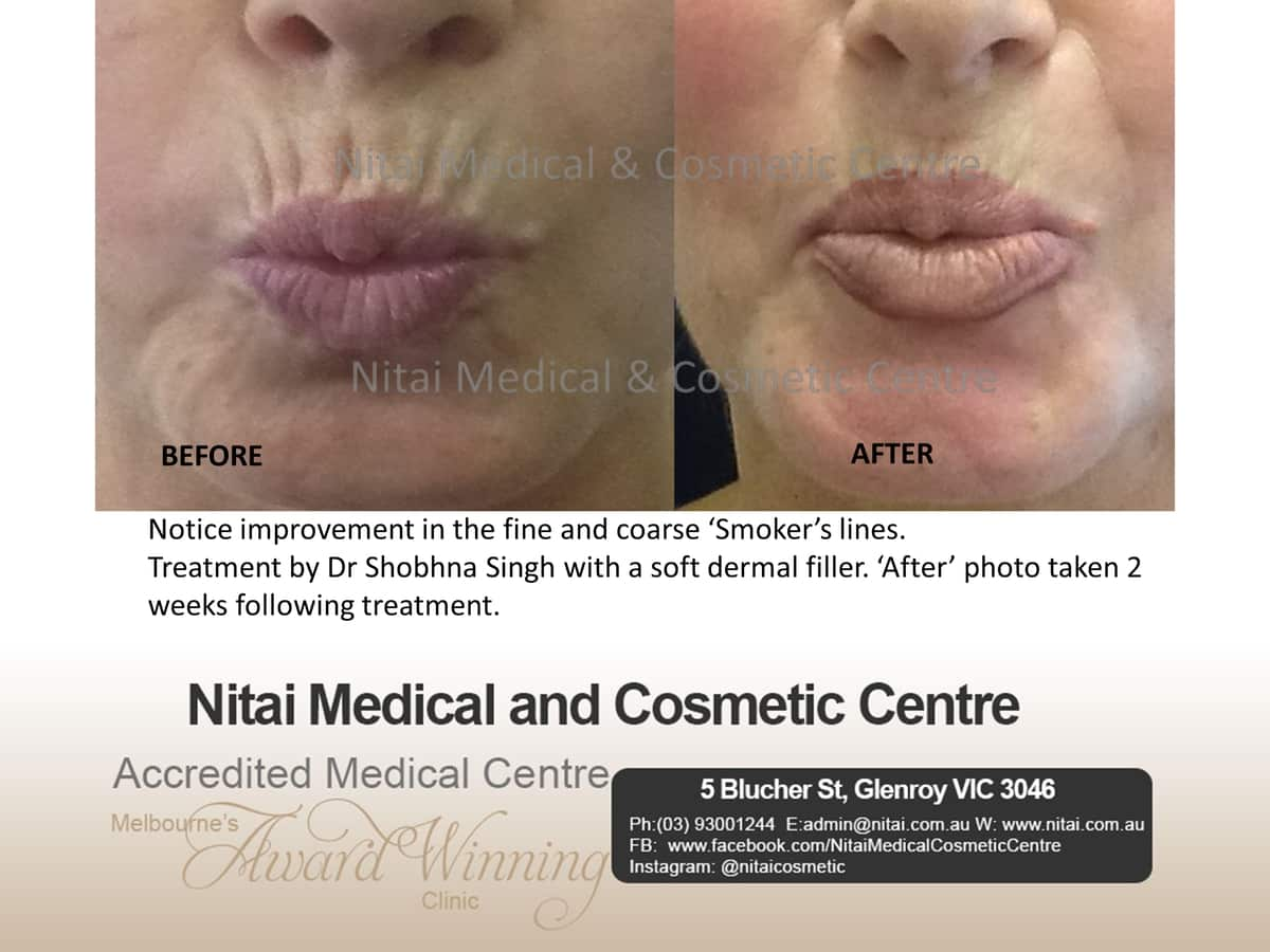 Fine and Coarse Smoker Lines - Nitai Medical & Cosmetic Centre