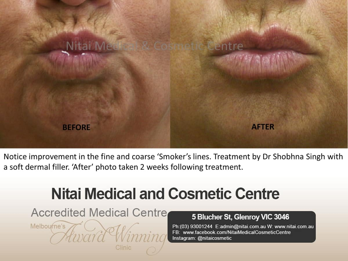 Smokers Line's - Nitai Medical & Cosmetic Centre
