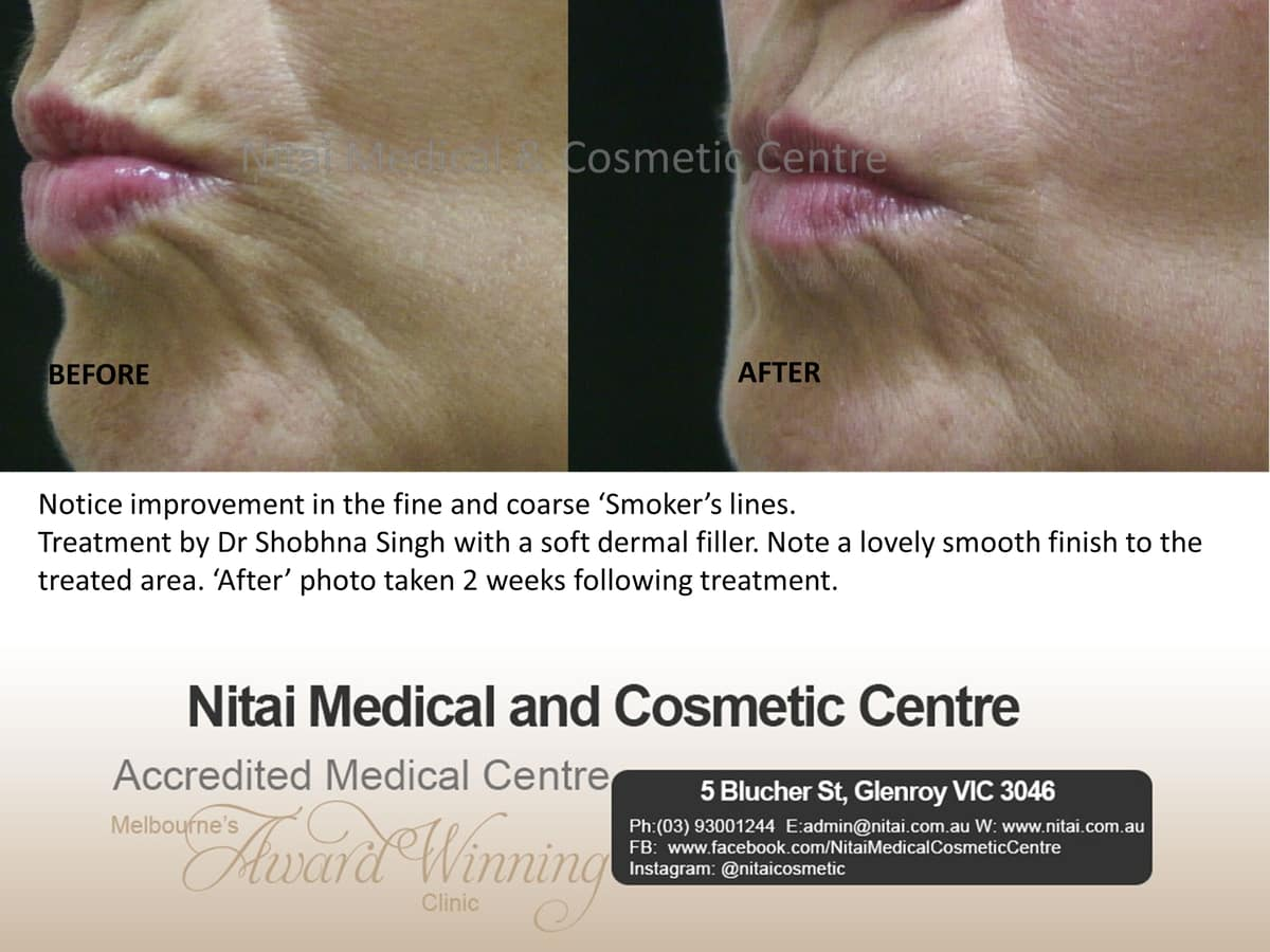 Smoker's Lines Treatment in Melbourne - Nitai Medical & Cosmetic Centre