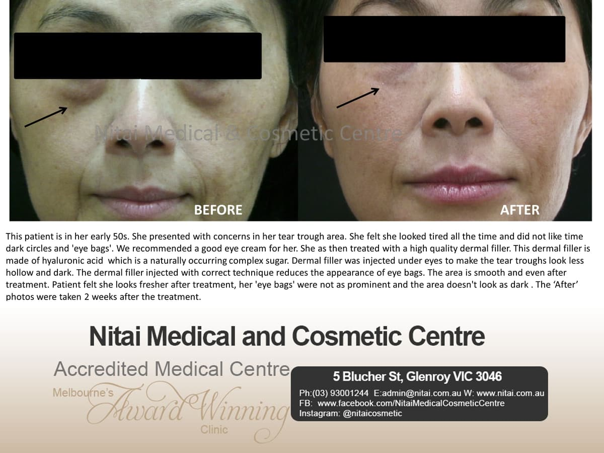 Dermal Fillers Treatment - Nitai Medical & Cosmetic Centre