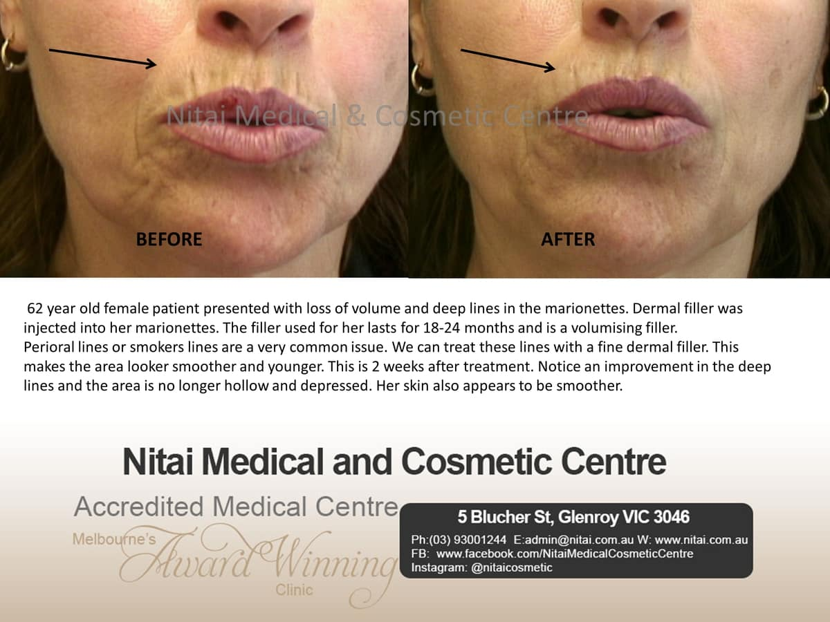 Treatment Smoker's Lines - Nitai Medical & Cosmetic Centre