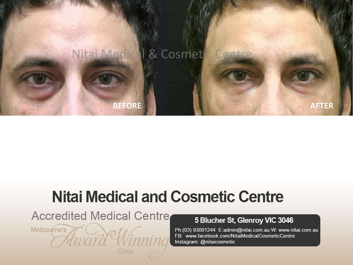 Tear Trough - Nitai Medical & Cosmetic Centre