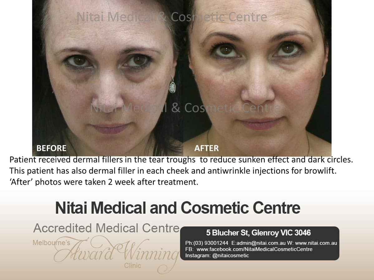 Dermal Fillers - Nitai Medical & Cosmetic Centre