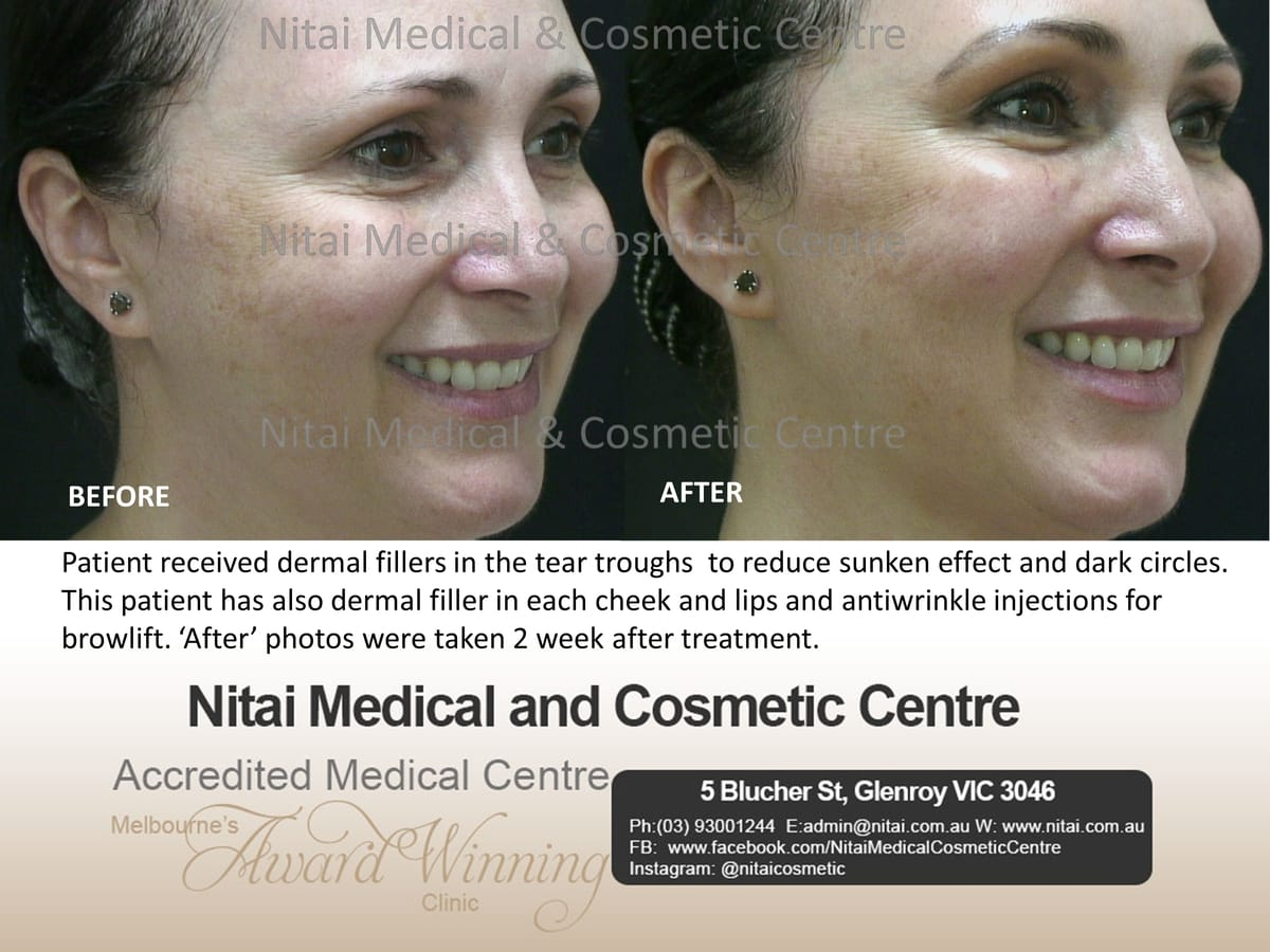 Dermal Fillers Tear Troughs Treatment - Nitai Medical & Cosmetic Centre