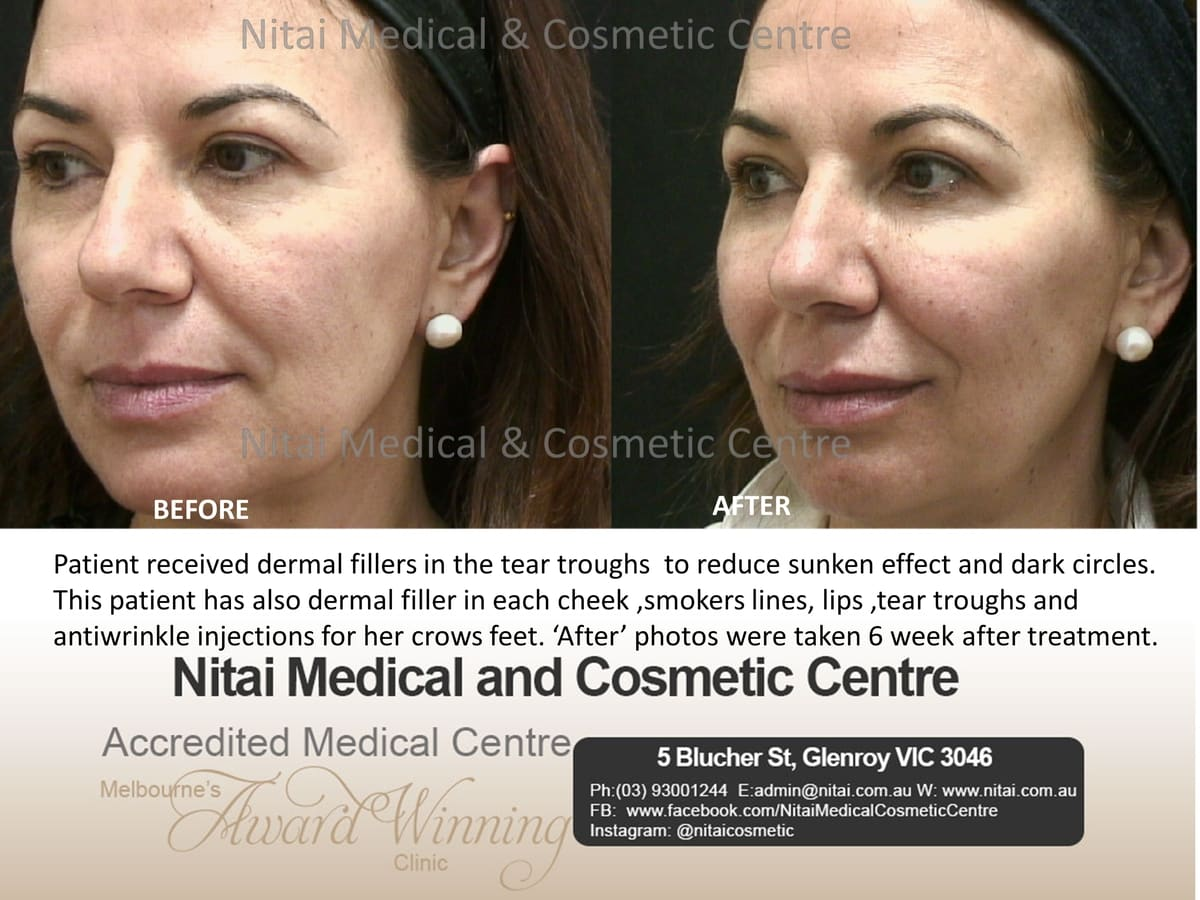 Tear Trough Dermal Fillers - Nitai Medical & Cosmetic Centre