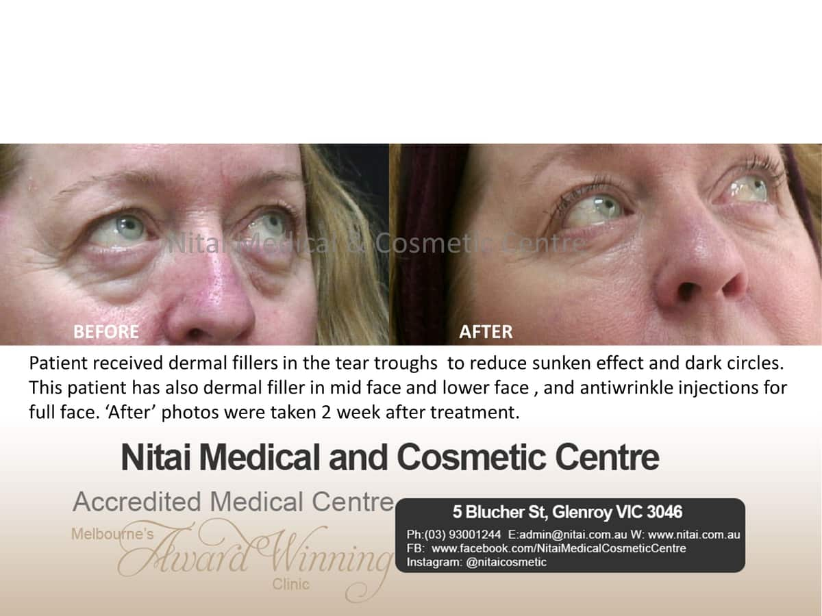 Dermal Fillers Melbourne - Nitai Medical & Cosmetic Centre
