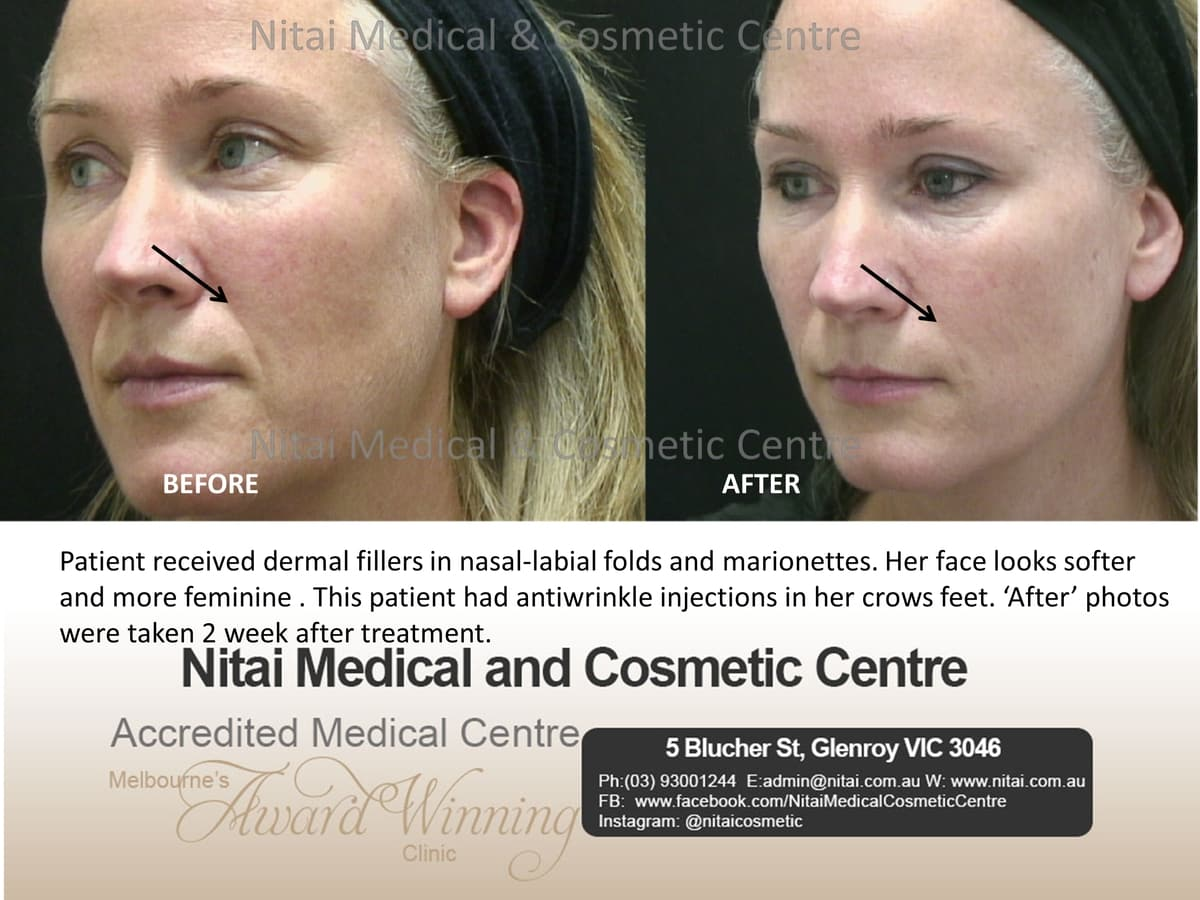 Nasolabial Folds and Marionettes - Nitai Medical & Cosmetic Centre