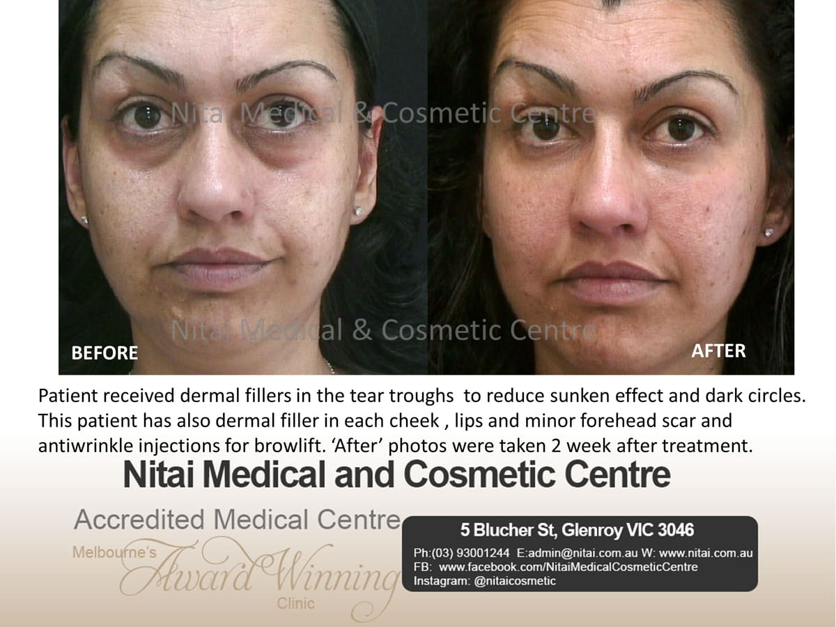 Tear Trough Dermal Fillers Treatment - Nitai Medical & Cosmetic Centre