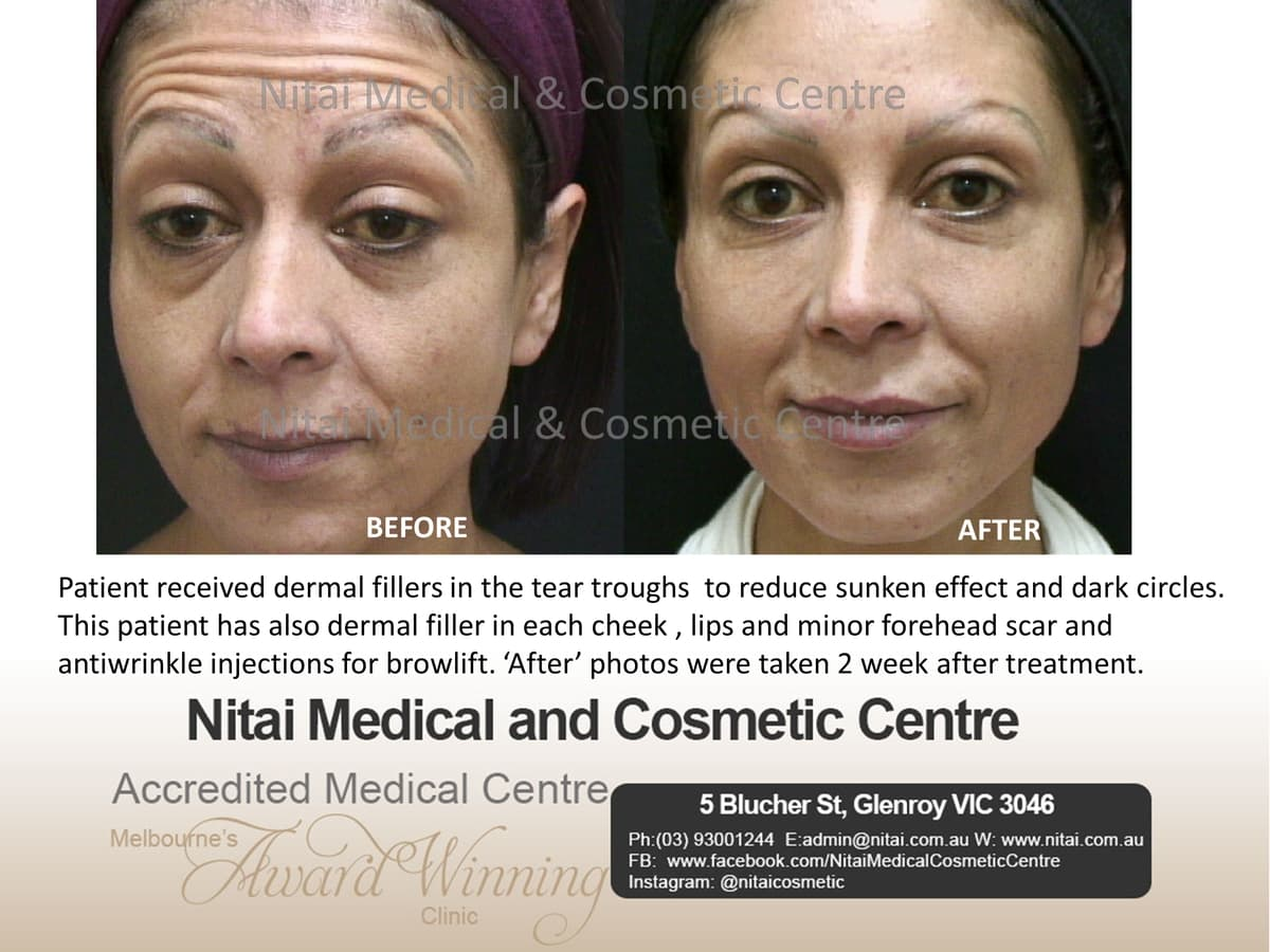 Dermal Fillers Tear Troughs - Nitai Medical & Cosmetic Centre